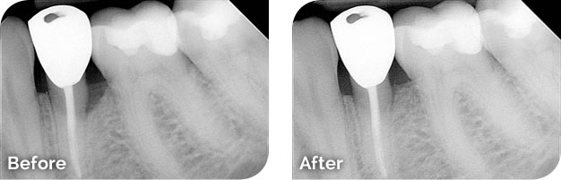 Bone Regeneration Before & After