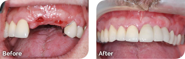 Dental Implant Before & After