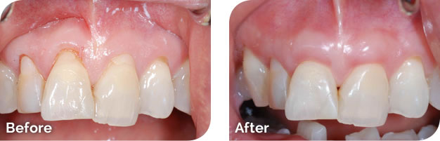 Soft Tissue Graft Before & After